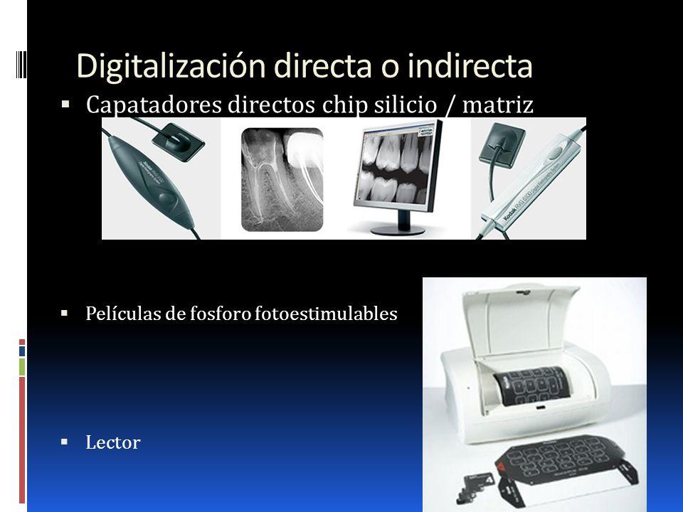 Digitalización directa o indirecta Capatadores directos chip silicio / matriz Películas de fosforo fotoestimulables Lector