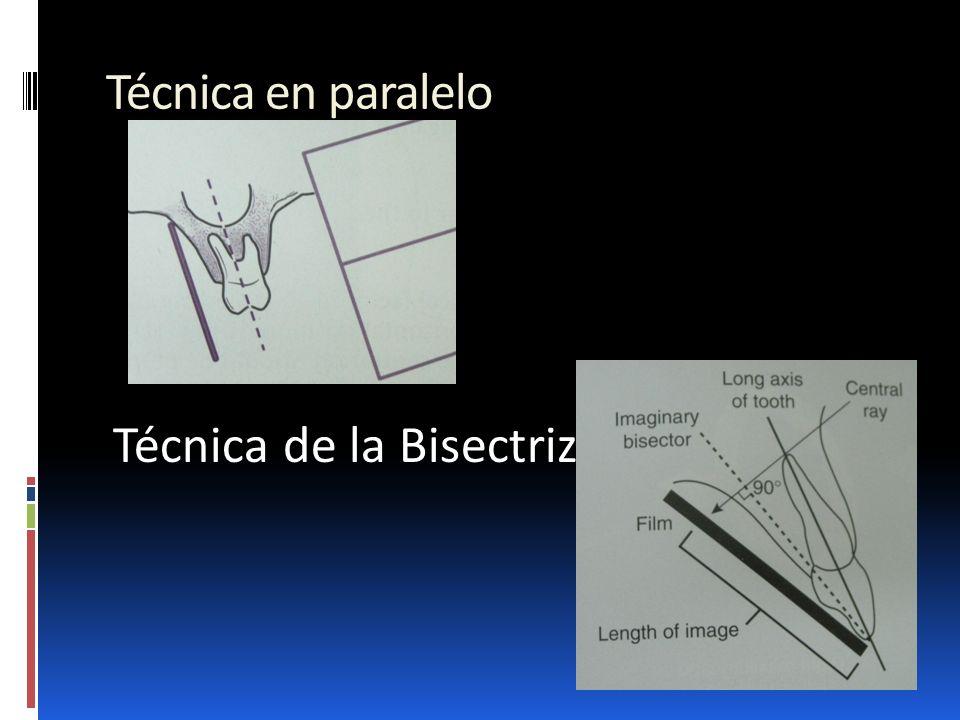 Técnica en paralelo Técnica de la Bisectriz