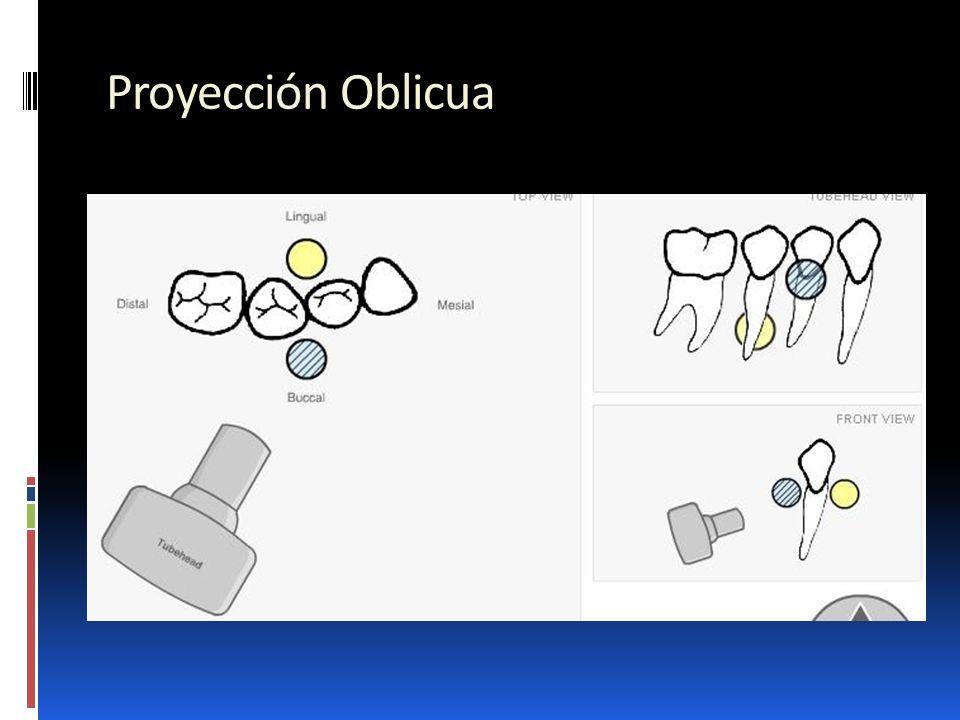 Proyección Oblicua.