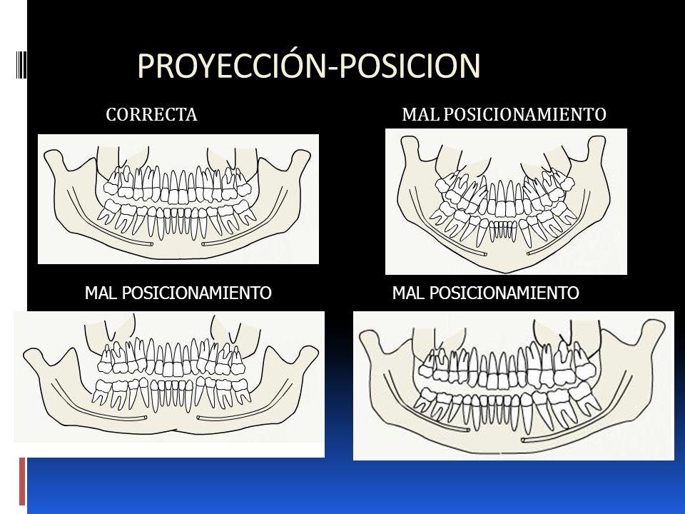 PROYECCIÓN-POSICION CORRECTA MAL POSICIONAMIENTO MAL POSICIONAMIENTO