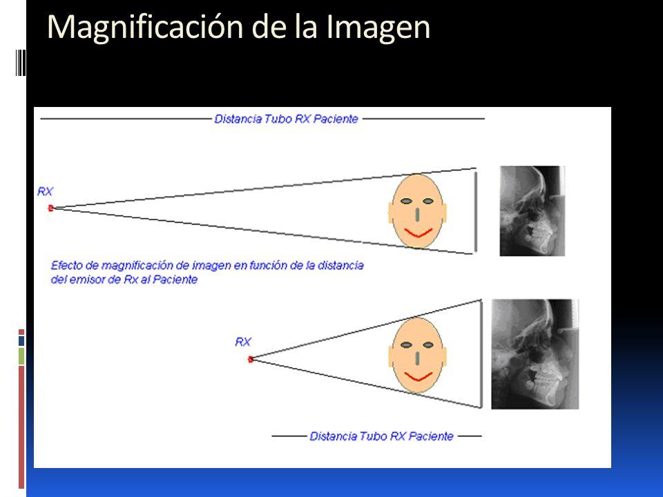 34 Magnificación de la Imagen