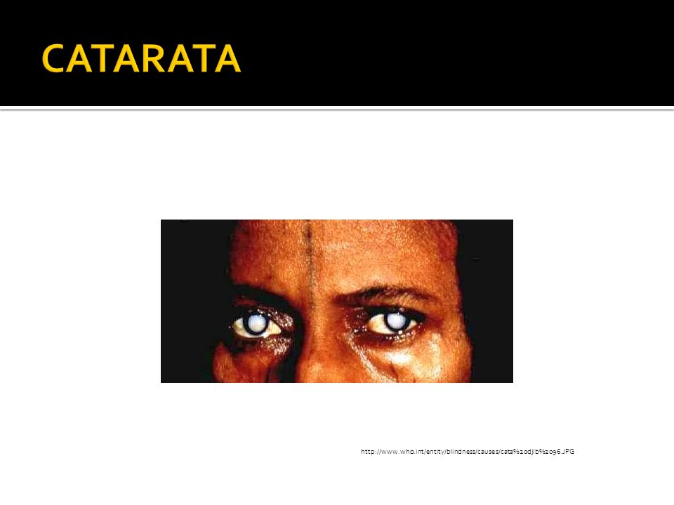 http://www.who.int/entity/blindness/causes/cata%20djib%2096.JPG