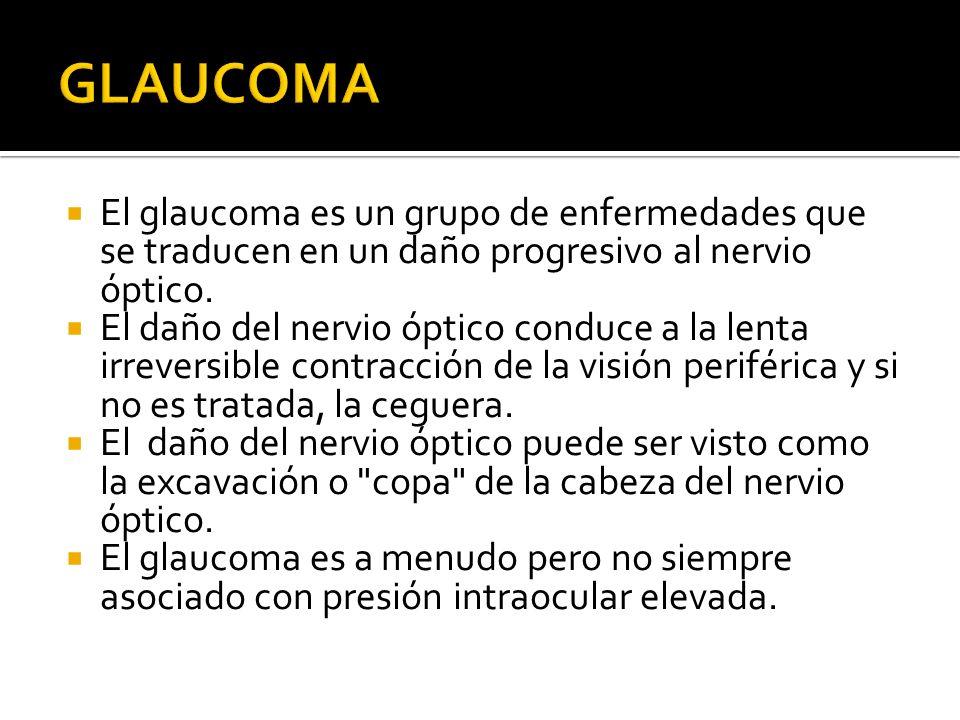 El glaucoma es un grupo de enfermedades que se traducen en un daño progresivo al nervio óptico. El daño del nervio óptico conduce a la lenta irreversi