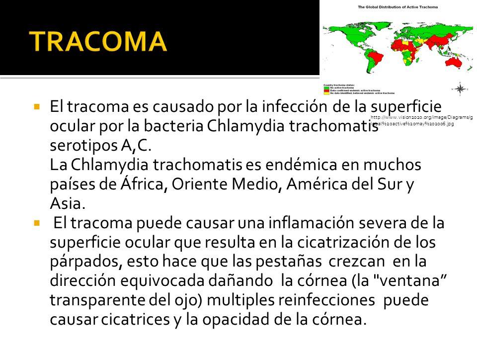 El tracoma es causado por la infección de la superficie ocular por la bacteria Chlamydia trachomatis serotipos A,C. La Chlamydia trachomatis es endémi