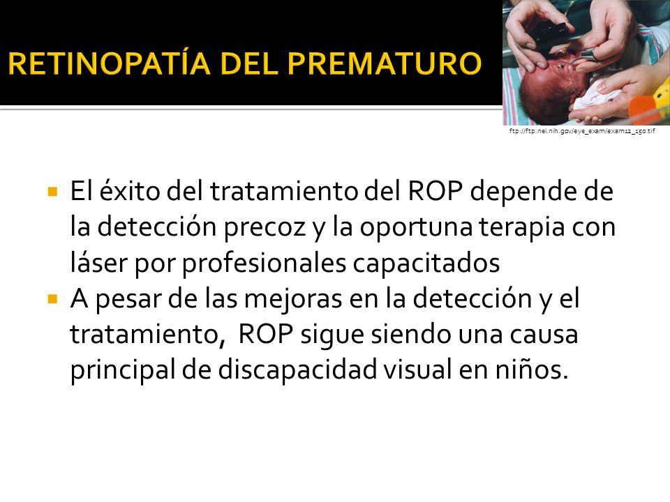 El éxito del tratamiento del ROP depende de la detección precoz y la oportuna terapia con láser por profesionales capacitados A pesar de las mejoras e