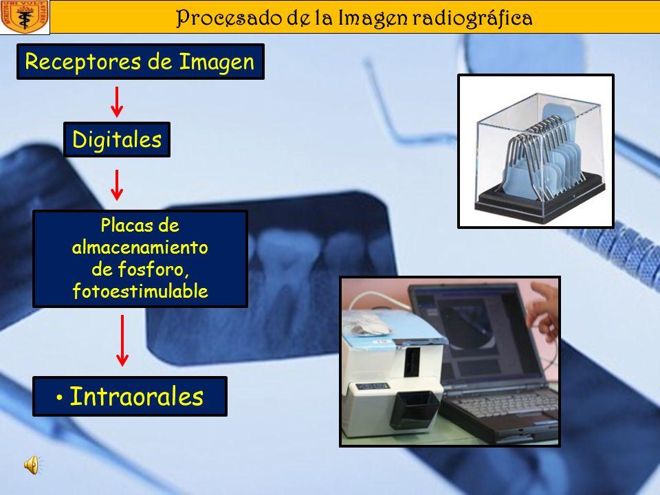 Procesado de la Imagen radiográfica Receptores de Imagen De estado Sólido (CCD o CMOS ) Extraorales Digitales