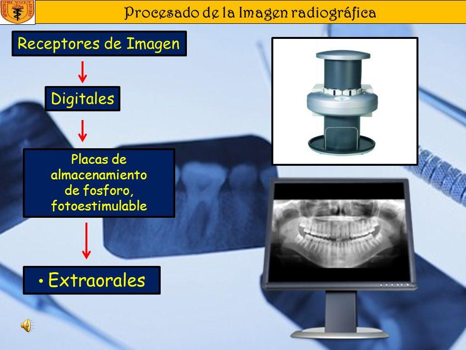 Procesado de la Imagen radiográfica Receptores de Imagen Intraorales Digitales Placas de almacenamiento de fosforo, fotoestimulable