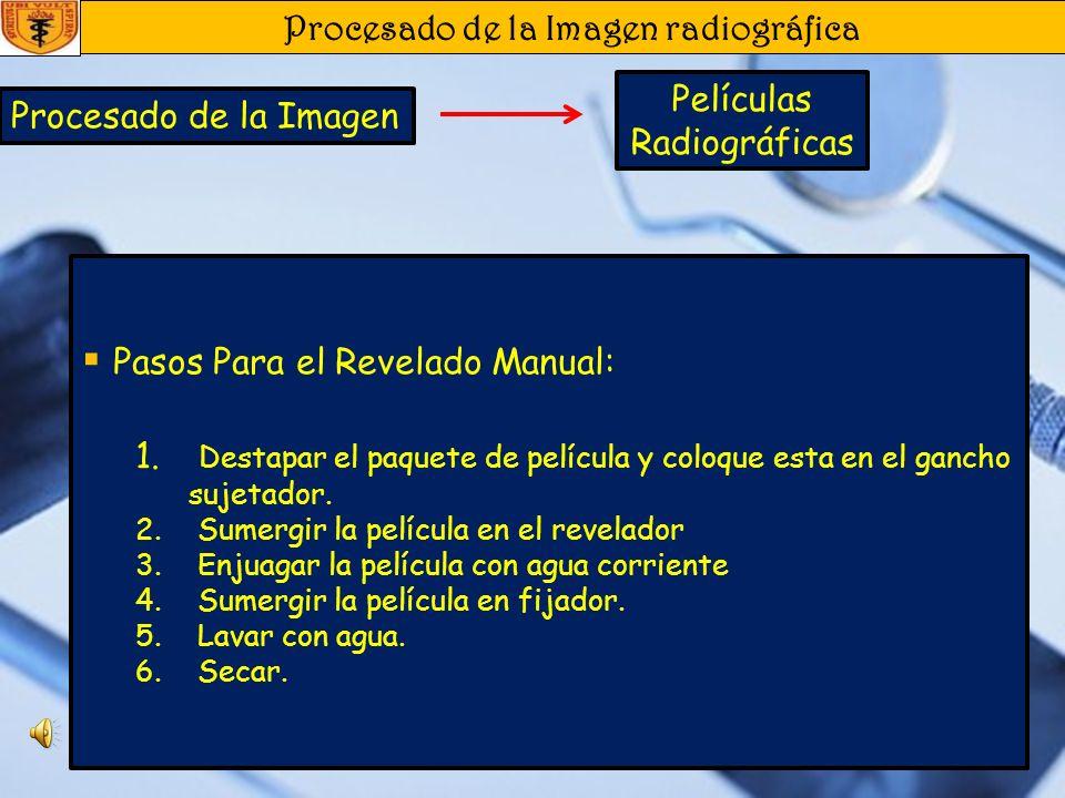 Procesado de la Imagen radiográfica Procesado de la Imagen Películas Radiográficas Solución Reveladora : contiene 4 ingredientes: Agente revelador: Ca