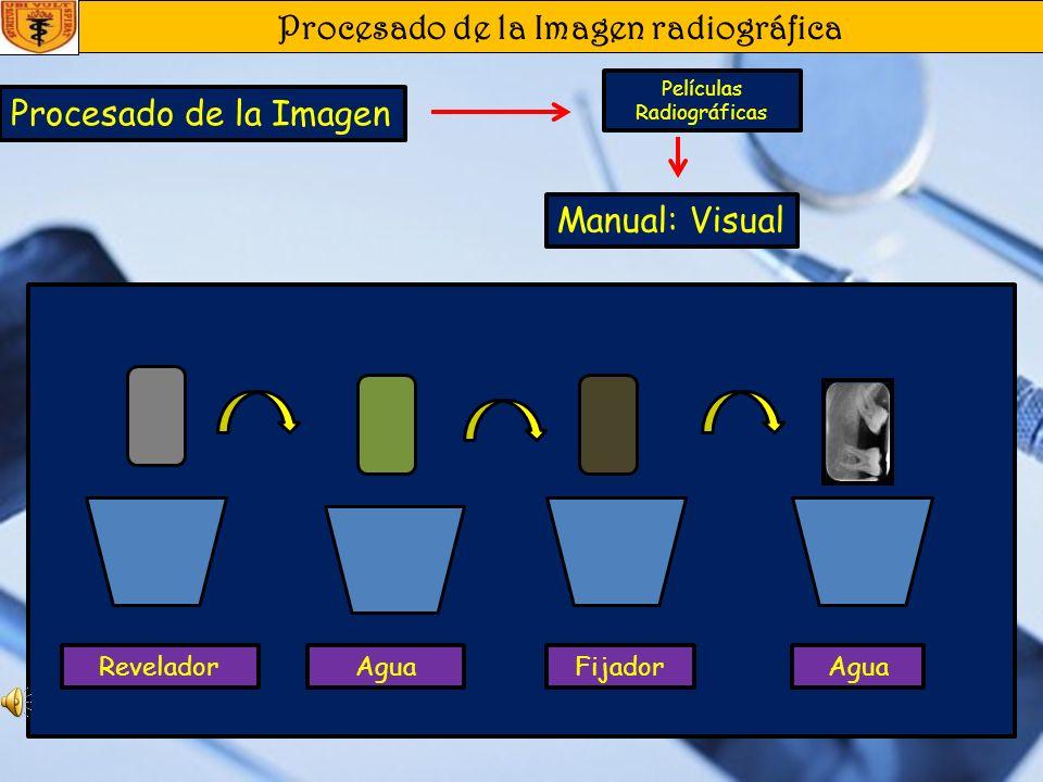 Procesado de la Imagen radiográfica Procesado de la Imagen Películas Radiográficas Pasos Para el Revelado Manual: 1. Destapar el paquete de película y