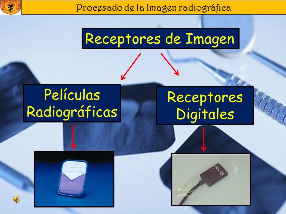 Procesado de la Imagen radiográfica Procesado de la Imagen Revelado Automático En este sistema las películas son transportadas automáticamente y una velocidad constante a través de los líquidos y el secador, pudiendo variarse el tiempo hasta reducirlo a 1 minuto