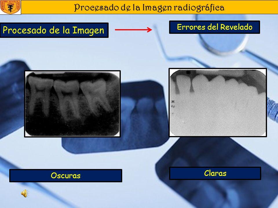 Procesado de la Imagen radiográfica Procesado de la Imagen Revelado Automático En este sistema las películas son transportadas automáticamente y una v