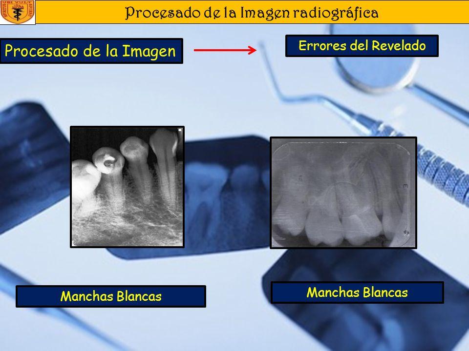 Procesado de la Imagen radiográfica Procesado de la Imagen Errores del Revelado Oscuras Claras