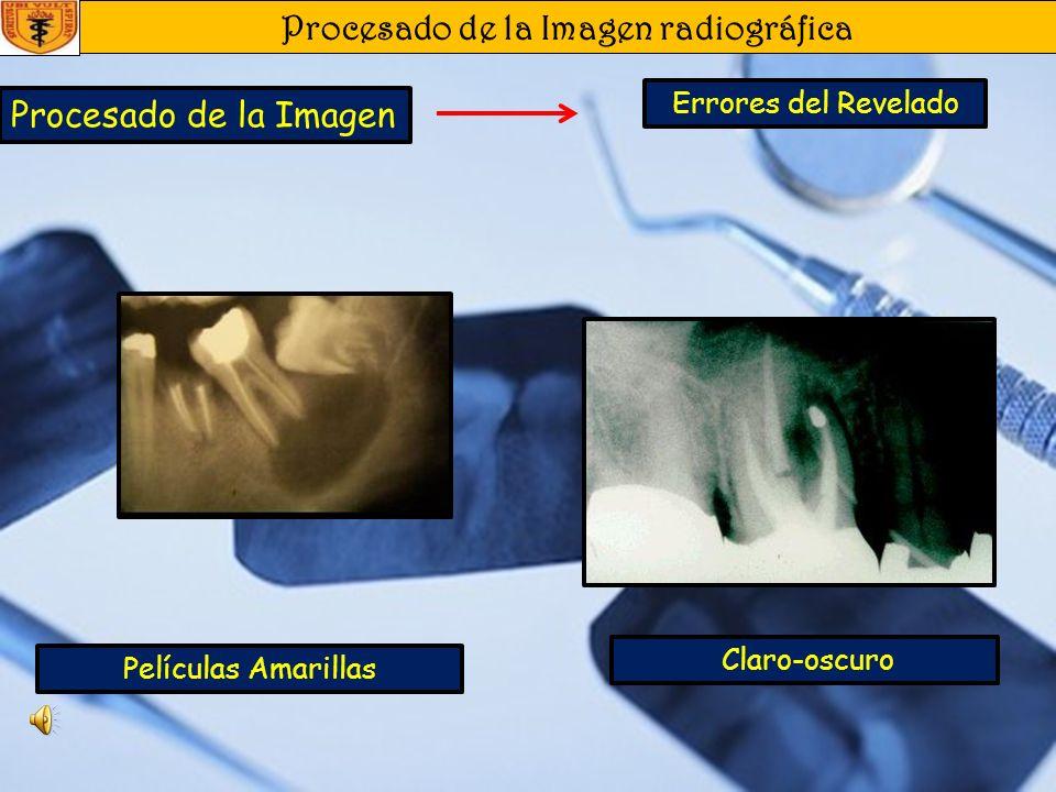 Procesado de la Imagen radiográfica Procesado de la Imagen Errores del Revelado Manchas Blancas