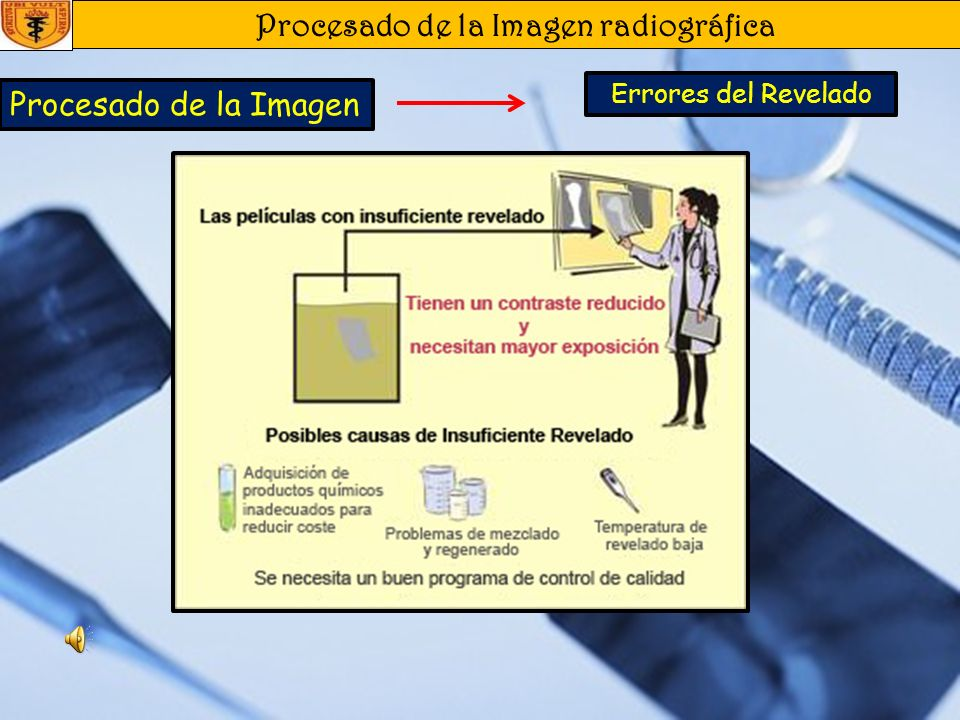 Procesado de la Imagen radiográfica Procesado de la Imagen Errores del Revelado Película Rayada Borrosa