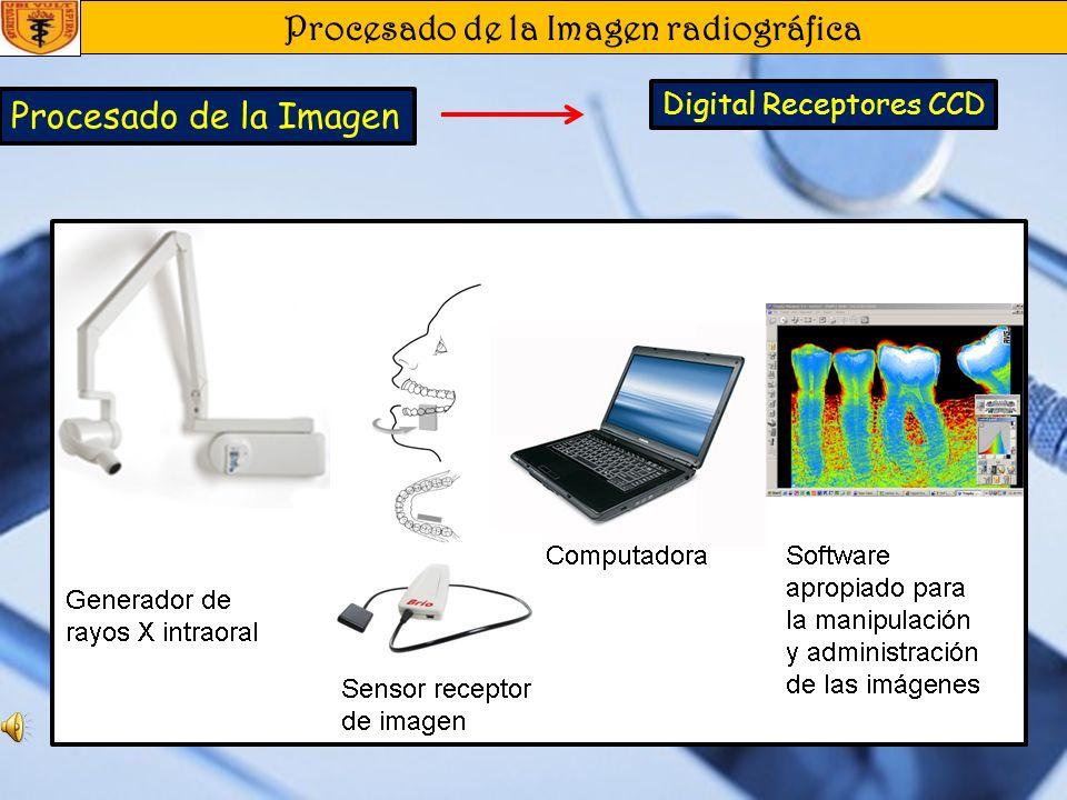 Procesado de la Imagen radiográfica Procesado de la Imagen Digital Realce de la imagen : Contraste, Brillo y Nitidez. Restauración de la imagen: Desha