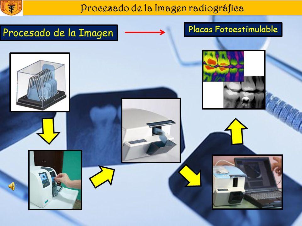 Procesado de la Imagen radiográfica Procesado de la Imagen Digital Receptores CCD