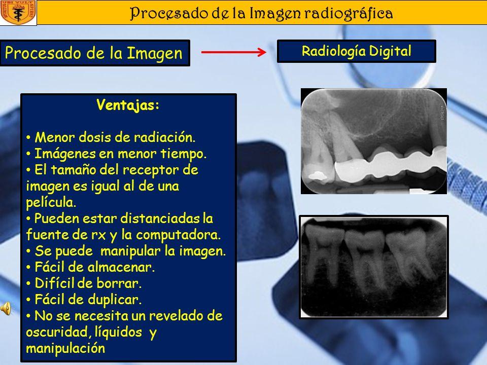 Procesado de la Imagen radiográfica Procesado de la Imagen Radiología Digital