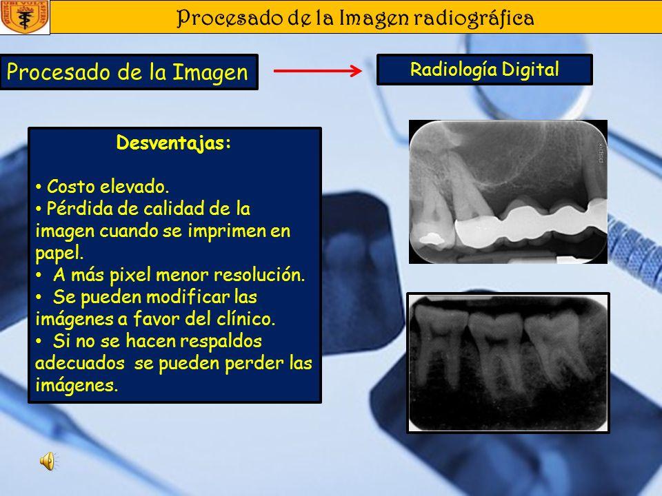 Procesado de la Imagen radiográfica Procesado de la Imagen Radiología Digital Ventajas: Menor dosis de radiación. Imágenes en menor tiempo. El tamaño