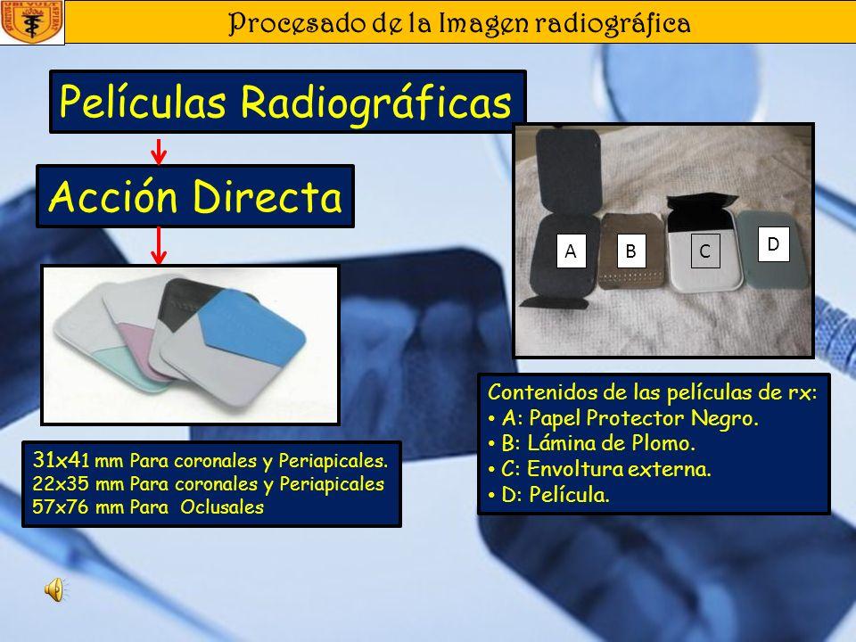 Procesado de la Imagen radiográfica Receptores de Imagen Acción Directa Acción Indirecta Intraorales Alta Calidad de Imagen Alta Sensibilidad a todos