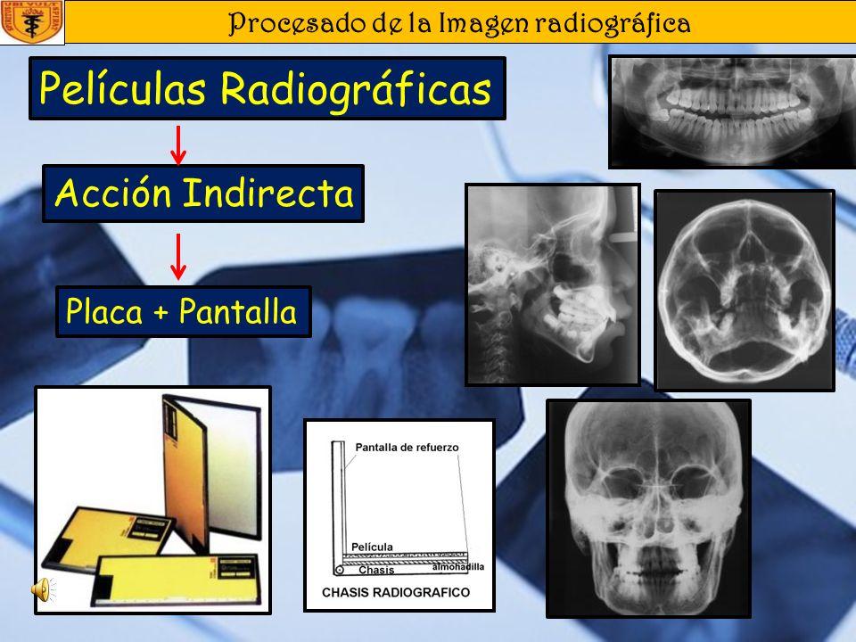 Procesado de la Imagen radiográfica Acción Indirecta Películas Radiográficas Placa + Pantalla