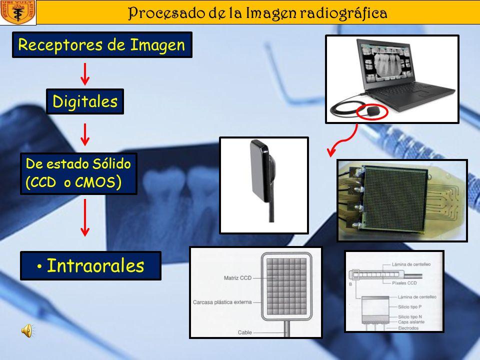 Procesado de la Imagen radiográfica Receptores de Imagen De estado Sólido (CCD o CMOS) Placas de almacenamiento de fosforo, fotoestimulable Intraorale