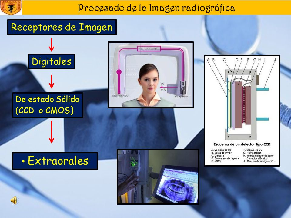 Procesado de la Imagen radiográfica Receptores de Imagen De estado Sólido (CCD o CMOS ) Intraorales Digitales