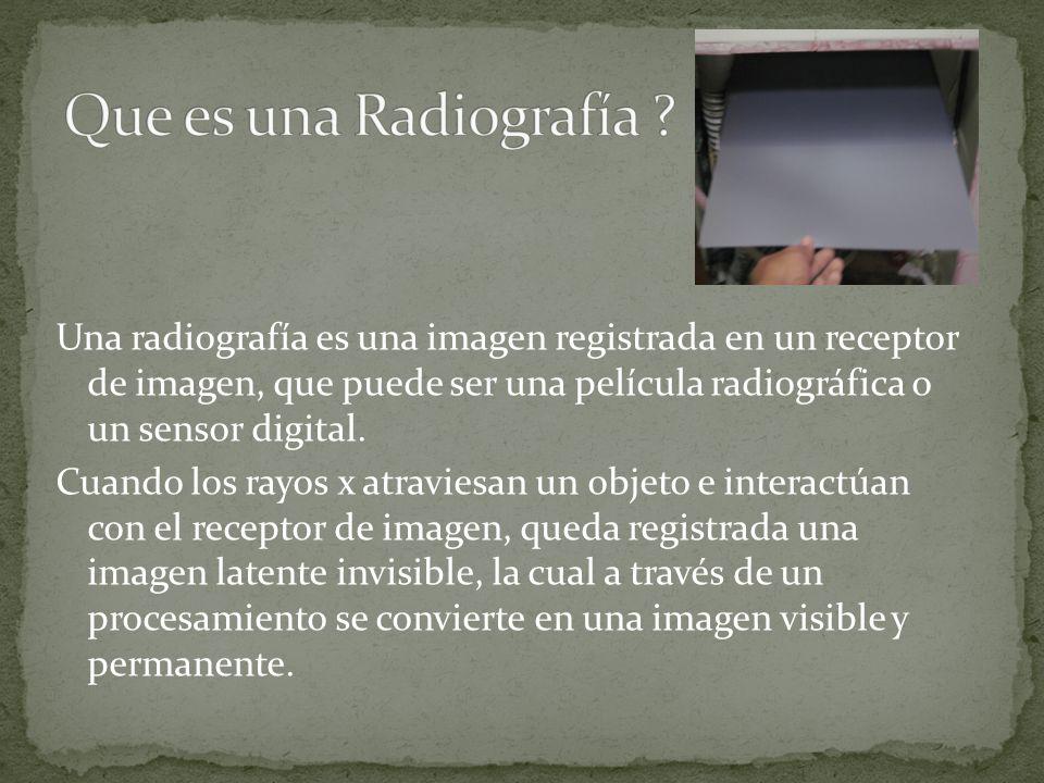 Una radiografía es una imagen registrada en un receptor de imagen, que puede ser una película radiográfica o un sensor digital. Cuando los rayos x atr