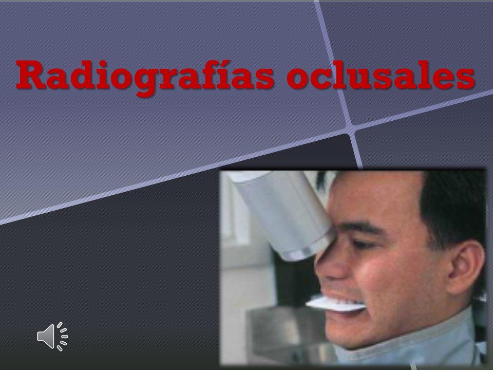 Oclusal anterior inferior Posición y retención de la película Eje mayor en sentido antero - posterior Punto de incidencia facial.