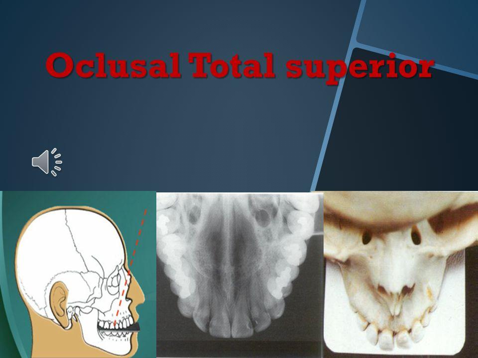 Oclusal total superior Posición y retención de la película: Eje largo en sentido transversal Cara activa en contacto con las caras oclusales de los di