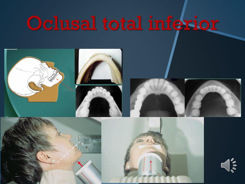 Oclusal total inferior Posición y retención de la película: Eje mayor de la película en sentido transversal o lateral Cara activa en contacto con las