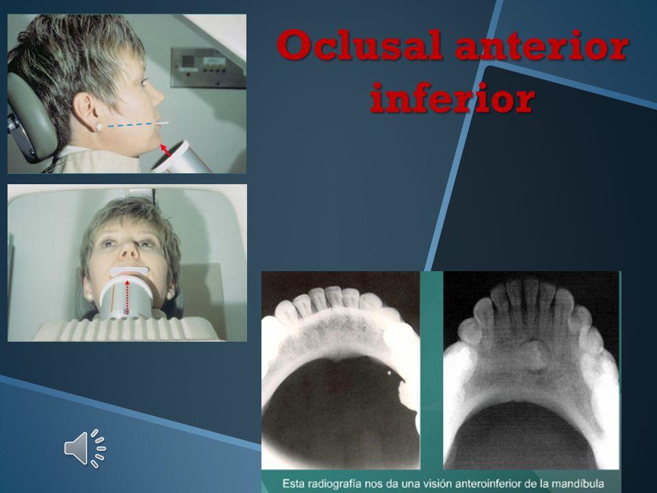 Oclusal anterior inferior Posición y retención de la película Eje mayor en sentido antero - posterior Punto de incidencia facial. Ubique el cono con u