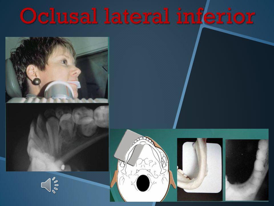 Oclusal lateral inferior Posición y retención de la película Ubique la película con un eje mayor en sentido antero-posterior hacia el lado a radiograf