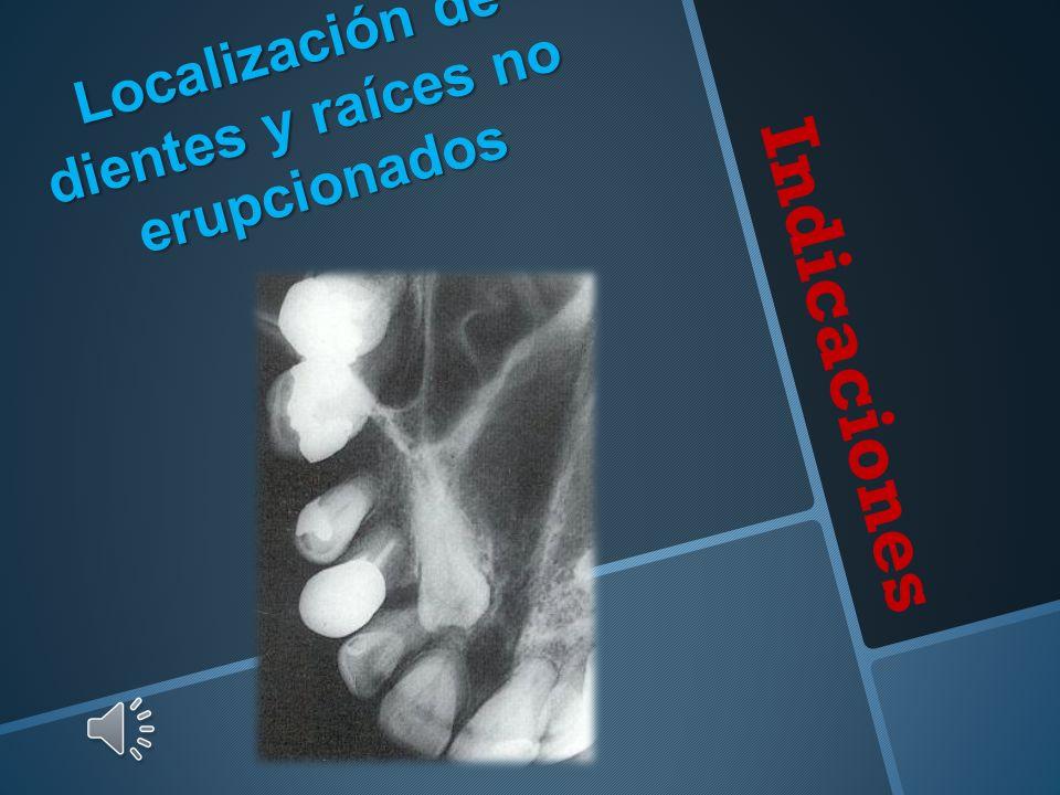 Indicaciones Localización de dientes y raíces no erupcionados