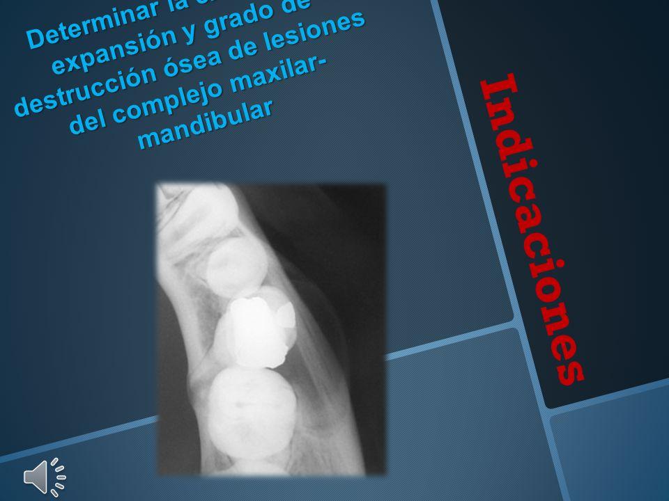 Indicaciones Determinar la extensión, expansión y grado de destrucción ósea de lesiones del complejo maxilar- mandibular
