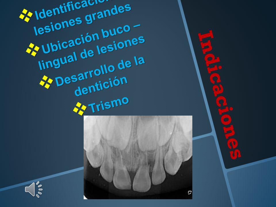 Indicaciones Identificación de lesiones grandes Identificación de lesiones grandes Ubicación buco – lingual de lesiones Ubicación buco – lingual de lesiones Desarrollo de la dentición Desarrollo de la dentición Trismo Trismo