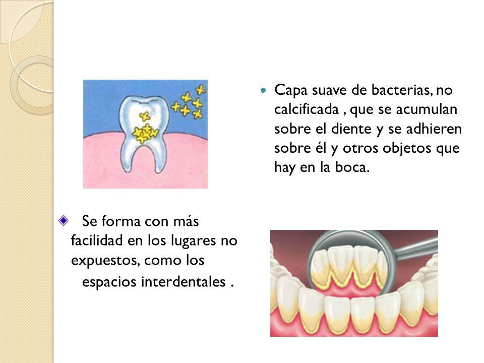 Capa suave de bacterias, no calcificada, que se acumulan sobre el diente y se adhieren sobre él y otros objetos que hay en la boca. Se forma con más f