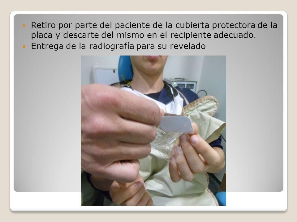 Entrega de la radiografía para su revelado