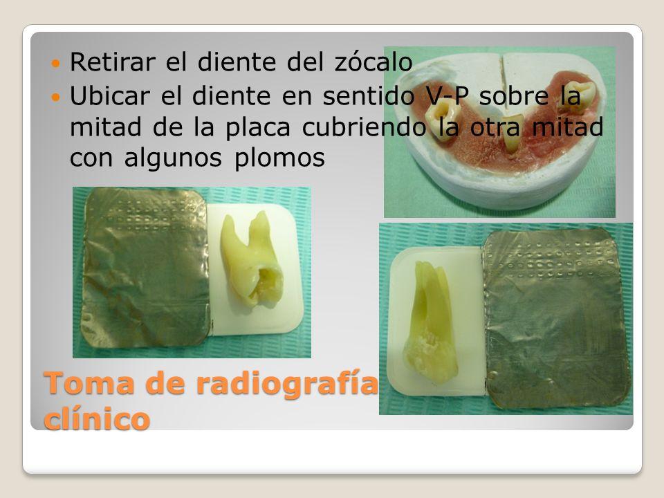 Toma de radiografía en el pre clínico Retirar el diente del zócalo Ubicar el diente en sentido V-P sobre la mitad de la placa cubriendo la otra mitad