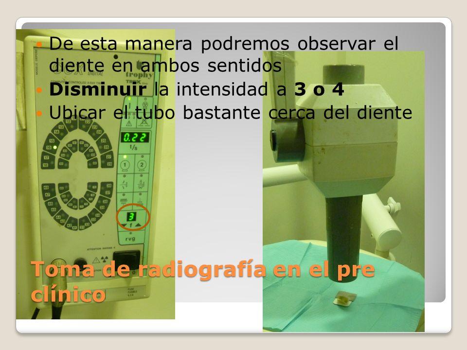Toma de radiografía en el pre clínico De esta manera podremos observar el diente en ambos sentidos Disminuir la intensidad a 3 o 4 Ubicar el tubo bast