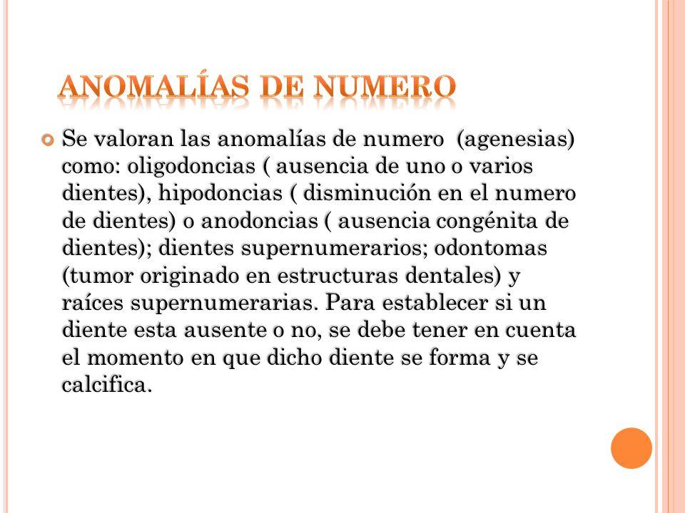 Se valoran las anomalías de numero (agenesias) como: oligodoncias ( ausencia de uno o varios dientes), hipodoncias ( disminución en el numero de dient