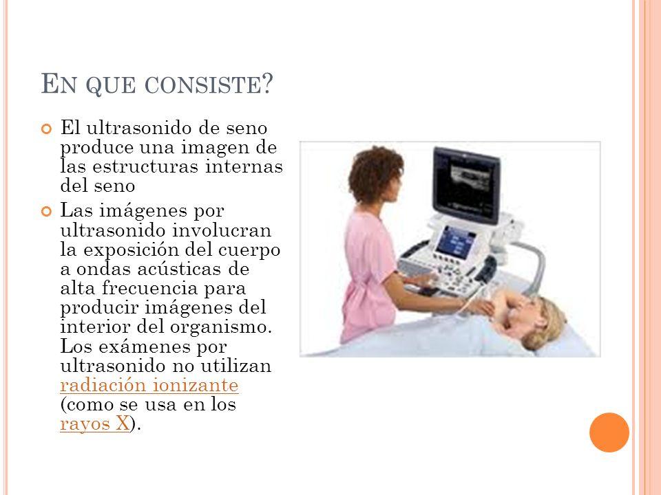 E N QUE CONSISTE ? El ultrasonido de seno produce una imagen de las estructuras internas del seno Las imágenes por ultrasonido involucran la exposició