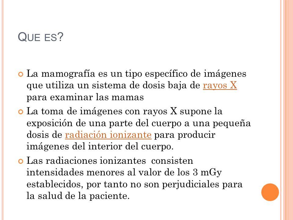H ISTORIA DE LA MAMOGRAFÍA Se puede resumir en 3 etapas: 1.