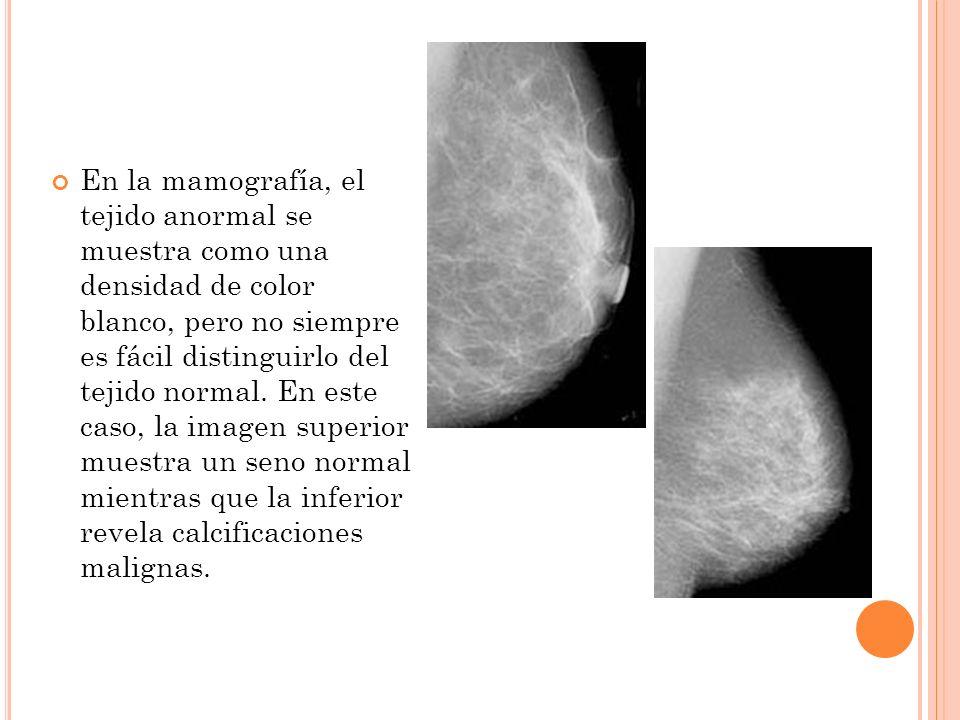 En la mamografía, el tejido anormal se muestra como una densidad de color blanco, pero no siempre es fácil distinguirlo del tejido normal. En este cas
