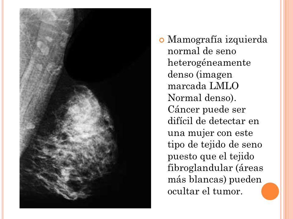 Mamografía izquierda normal de seno heterogéneamente denso (imagen marcada LMLO Normal denso). Cáncer puede ser difícil de detectar en una mujer con e