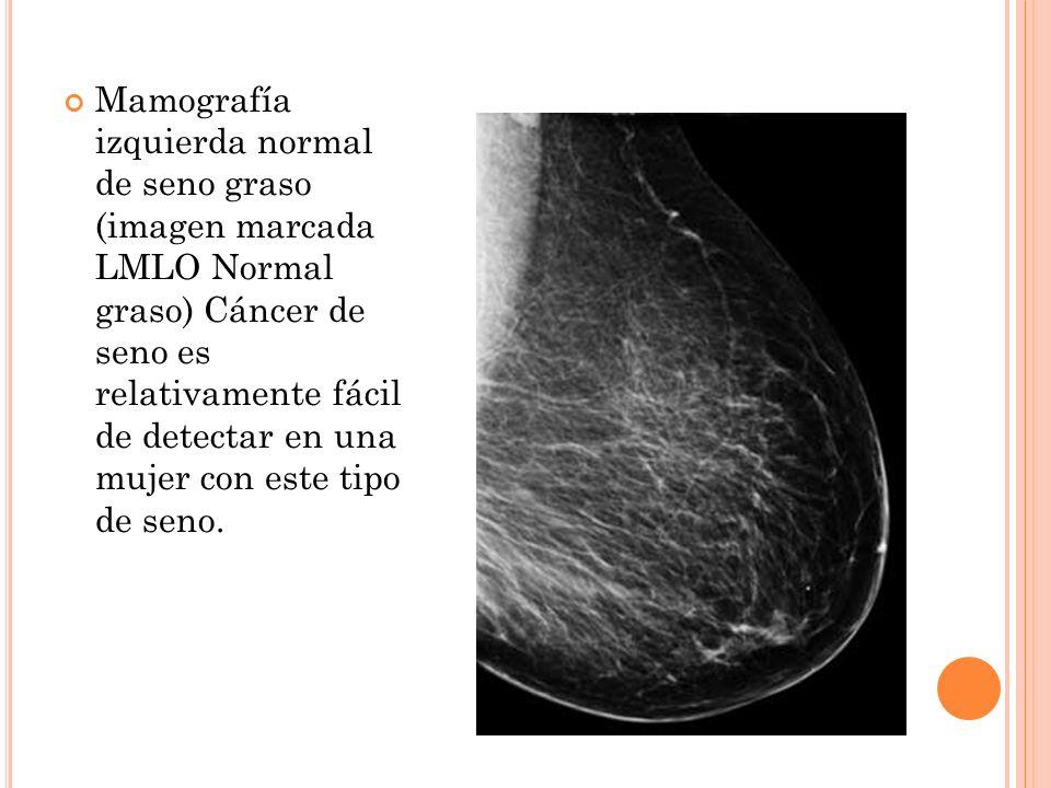 Mamografía izquierda normal de seno graso (imagen marcada LMLO Normal graso) Cáncer de seno es relativamente fácil de detectar en una mujer con este t