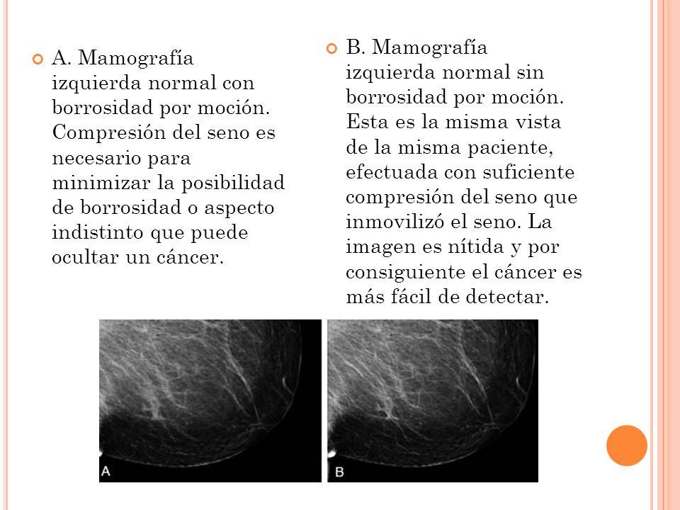 A. Mamografía izquierda normal con borrosidad por moción. Compresión del seno es necesario para minimizar la posibilidad de borrosidad o aspecto indis