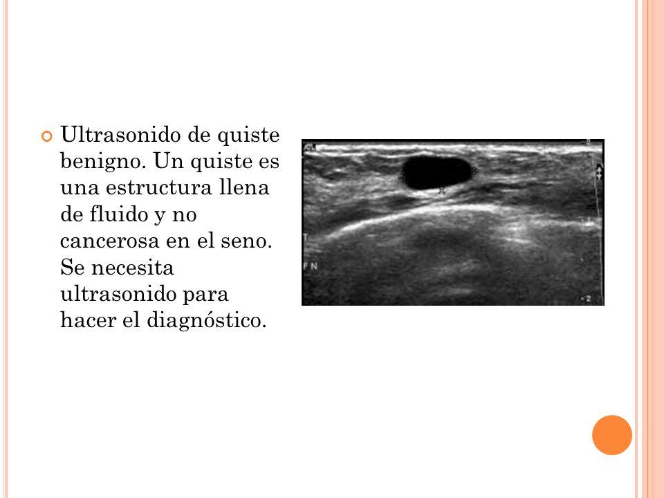 Ultrasonido de quiste benigno. Un quiste es una estructura llena de fluido y no cancerosa en el seno. Se necesita ultrasonido para hacer el diagnóstic
