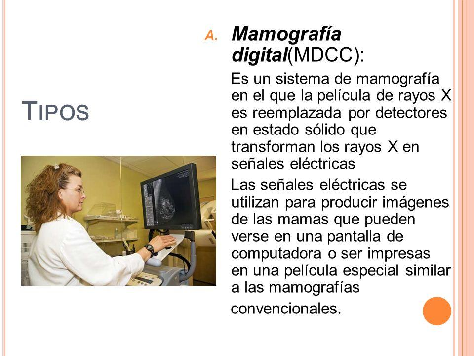 T IPOS A. Mamografía digital(MDCC): Es un sistema de mamografía en el que la película de rayos X es reemplazada por detectores en estado sólido que tr