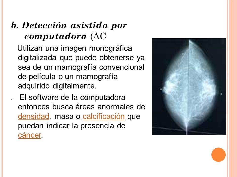 b. Detección asistida por computadora (AC Utilizan una imagen monográfica digitalizada que puede obtenerse ya sea de un mamografía convencional de pel