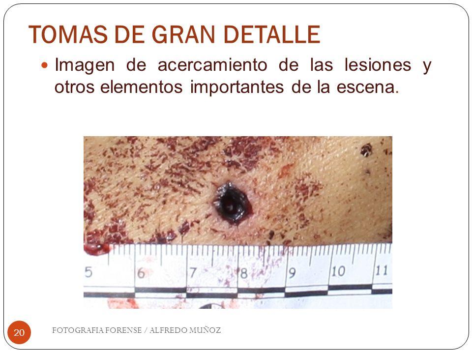 TOMAS DE GRAN DETALLE 20 Imagen de acercamiento de las lesiones y otros elementos importantes de la escena. FOTOGRAFIA FORENSE / ALFREDO MUÑOZ
